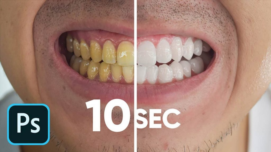 Here's a Simple Way to Whiten Teeth in Photoshop in Just 10 Seconds